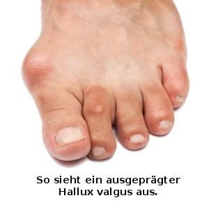 Hallux Valgus Symptome, Diagnose & Therapie | Gesundheits Wiki