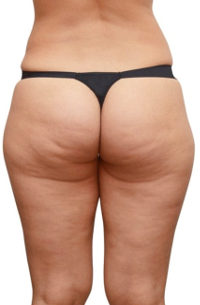 dicke beine cellulite